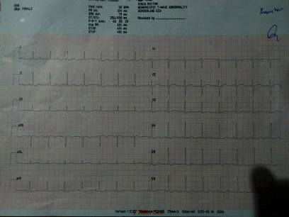39 yrs old female with SoB headache & fatigue
