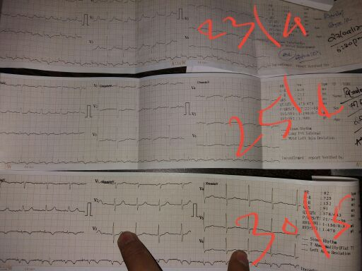 65Y/F ECG at different dates<br>Kindly Dx the present situation