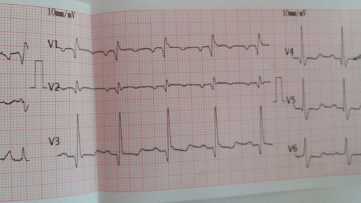 Elderly female with painful chest. Findings in ECG?