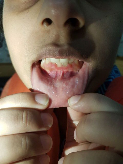 Young girl with symptomless condition. Comments?