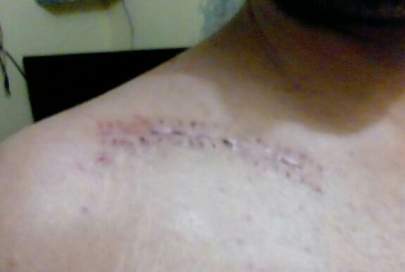 Management of Scar post RTA. Comment?