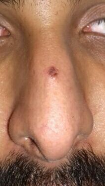 black mole with irregular edges and parallel to skin surface after electro fulgration