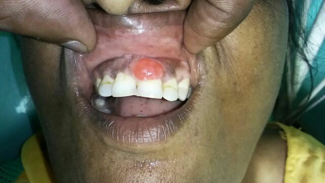Young pt. with swelling on gums. Comments?