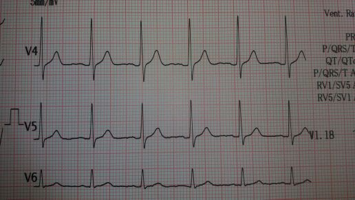 Findings from ECG shown?
