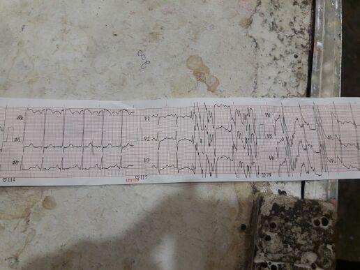 Findings from ECG?