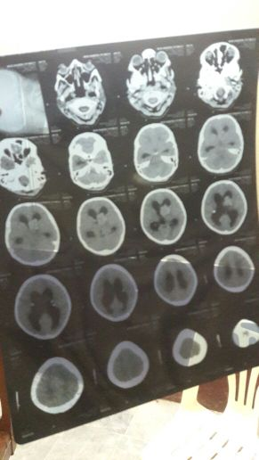Young female in status epilepticus. Comments?