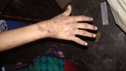 10 y/o presented with the skin problem<br>Dx & Tx?
