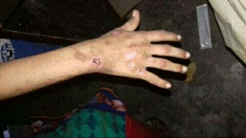 Spots all over hands<br>Dx & Tx