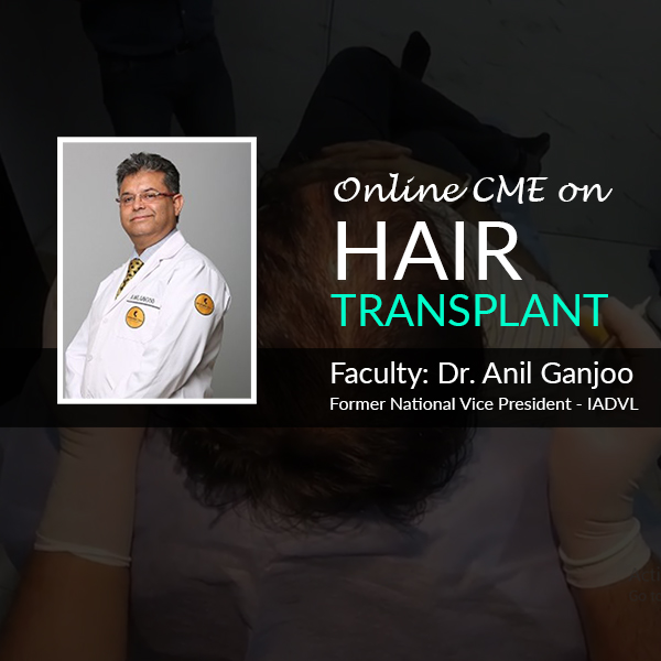 Artificial Hair Implant