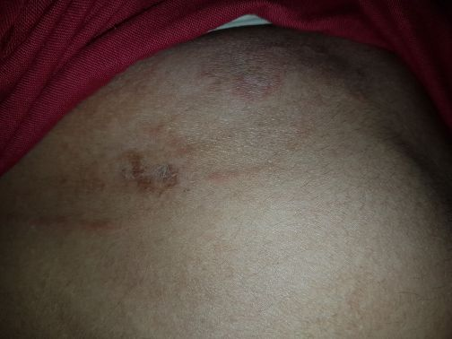 Patient with c/o itching since past 6 months<br>Suggested Dx & Tx?