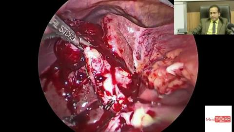 A Life saving surgery that could turn Gangrenous - Watch how Dr. Rajat Goel performs Empyema of the Gall Bladder