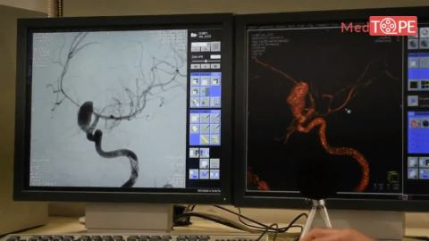 Coiling of Brain Aneurysm by none other than Dr. Gaurav Goel, Head of Neuro Intervention Surgery at Medanta - Watch now !!