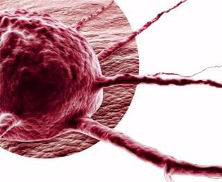 Ozonioterapia no tratamento do câncer