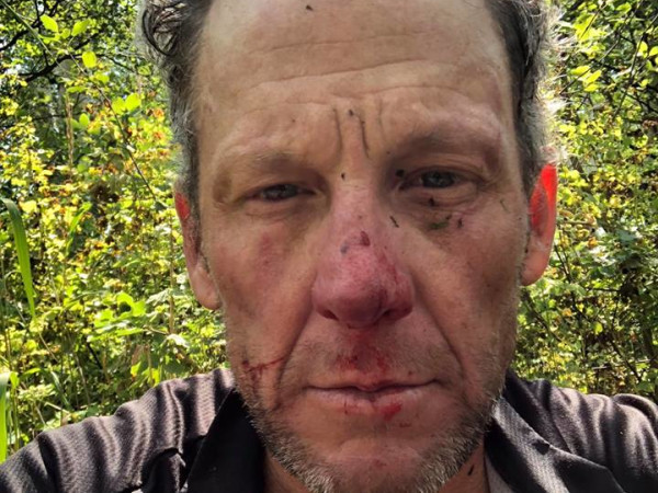 Lance Armstrong accident