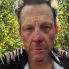 Katie Friel: Lance Armstrong hospitalized after bloody bike accident