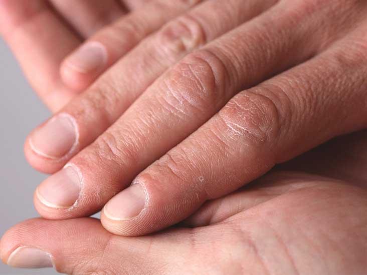 Fingernails stress