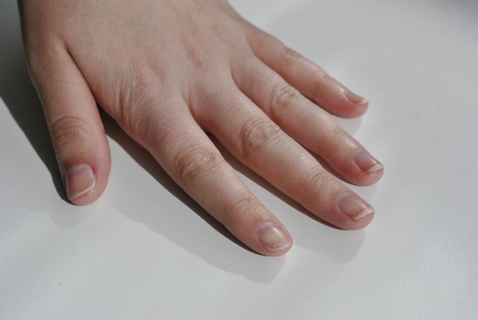 Exterior no nails