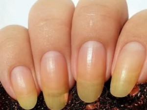 Ногти после шеллака пожелтели