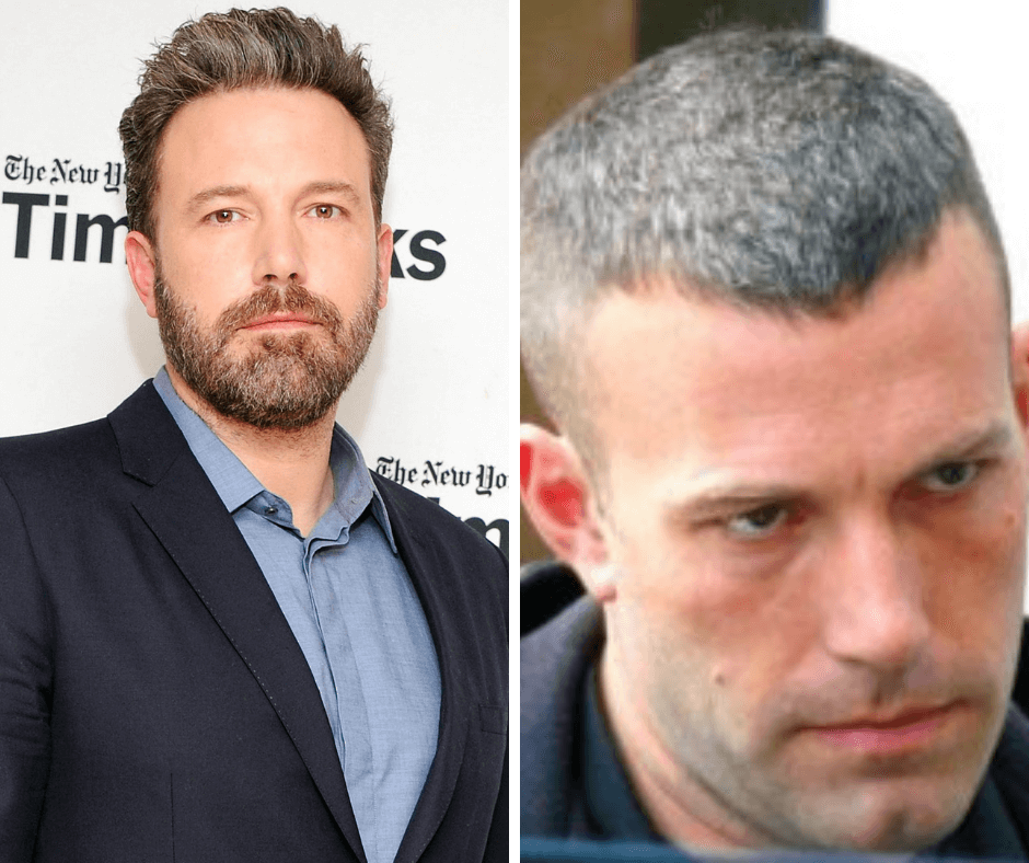 Hollywood celebs with hair loss