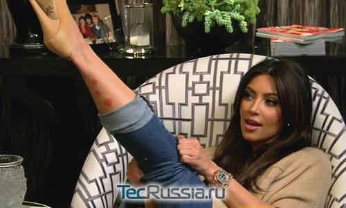 У Ким Кардашьян обнаружен псориаз