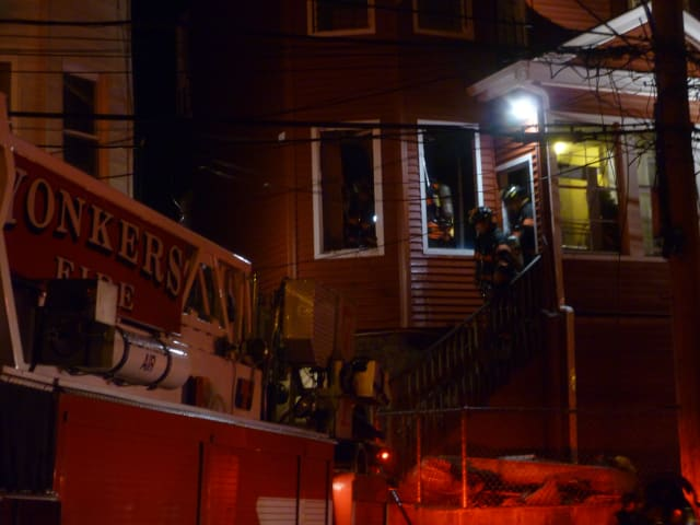 An 8-month old baby was hospitalized after suffering second-degree burns to the face during a Tuesday night blaze in Yonkers.