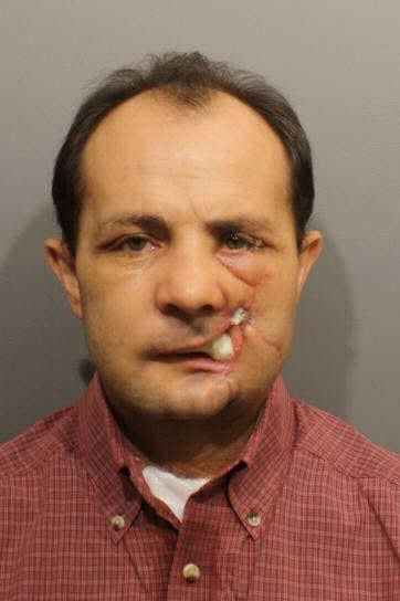 Charles Garcia, 47, of Wilton, has pleaded not guilty to two charges in connection with a shooting incident at his Grumman Avenue home.