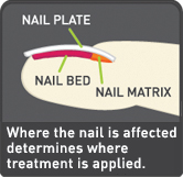 Pitting of nails psoriasis