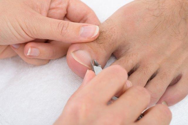 Soften hard toenails
