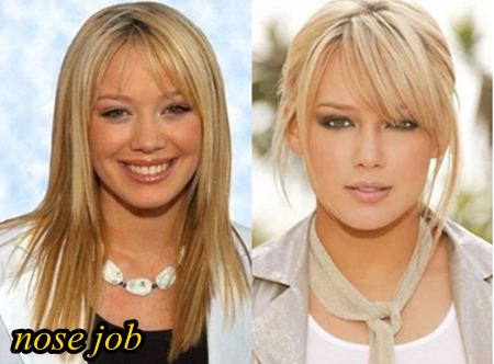 Hilary duff before and after veneers