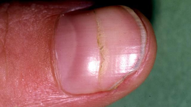 Bumps in nails cause