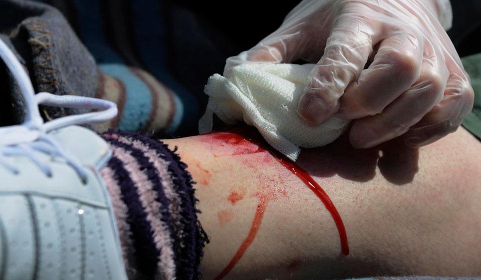 Для зупинки артеріальної кровотечі необхідно
