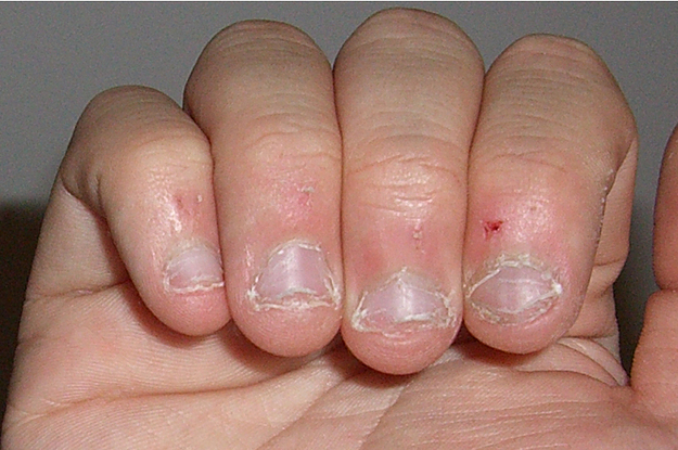Why is it bad to bite your fingernails