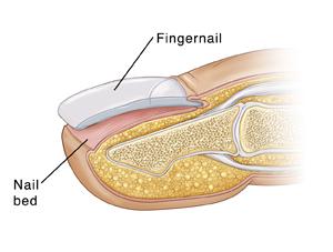 Fingernails detaching