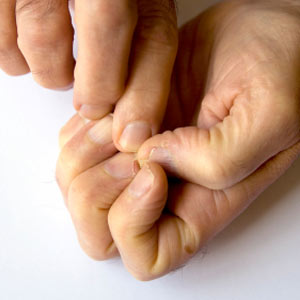 Cracks in nails cause