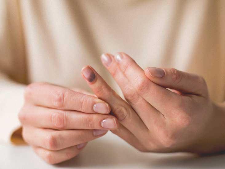 Pain fingernails