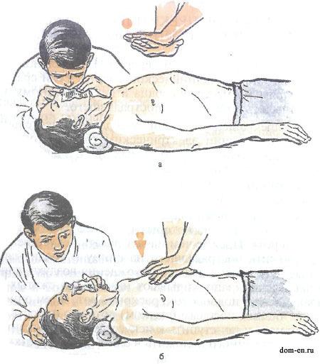 Непрямий масаж серця — техніка виконання і коли повинен застосовуватися правила проведення штучного дихання