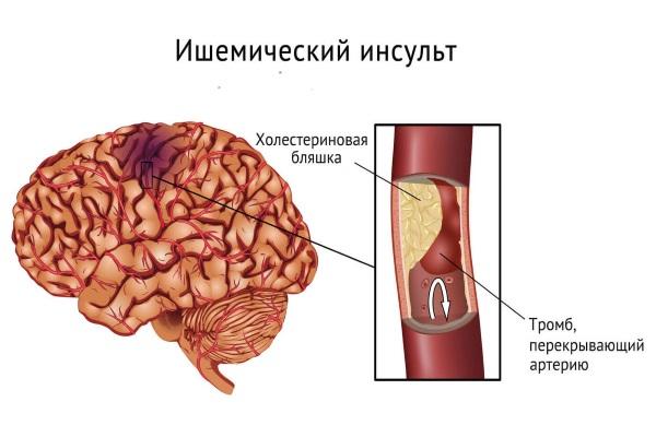 Норма холестерина в крови у женщин в 55 лет