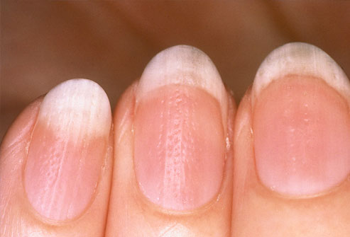 Nails diseases images