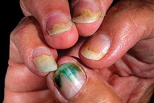 Mold on nails
