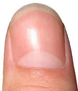 Discolored fingernails red