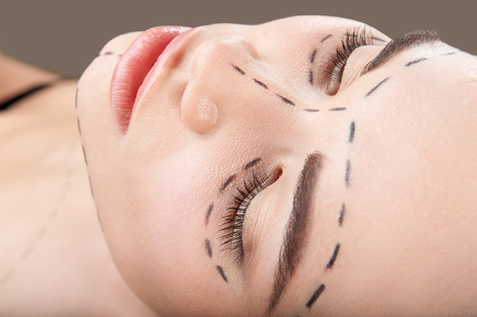 Cheekbone implants celebrities