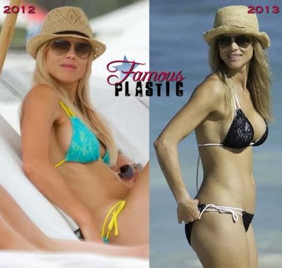 Celebrities and bad plastic surgery