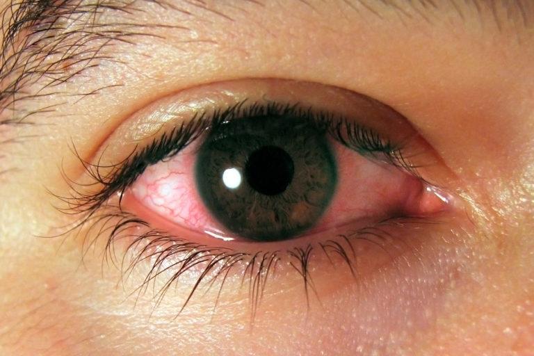 Natural ways to get rid of pink eye