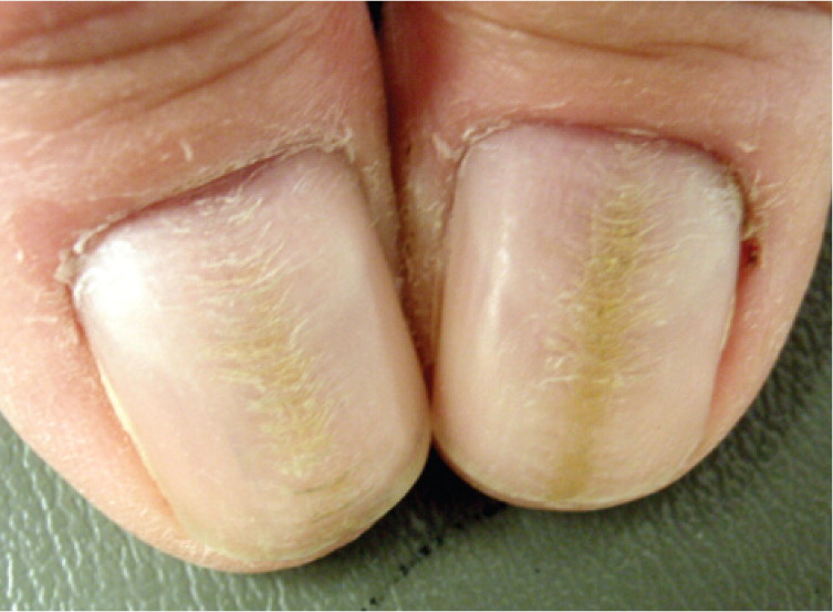 Dystrophic fingernails