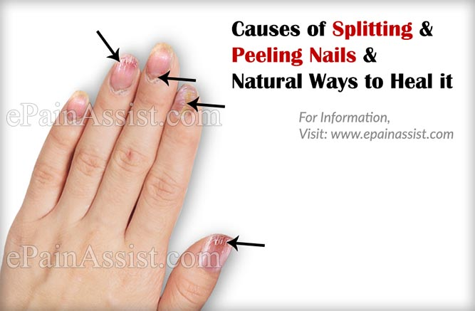 Peeling nails cause