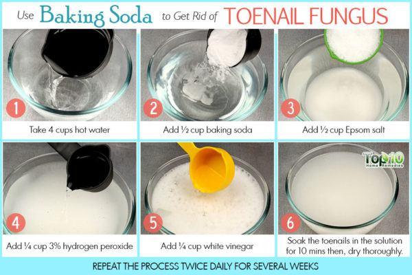 baking soda to treat toenail fungus