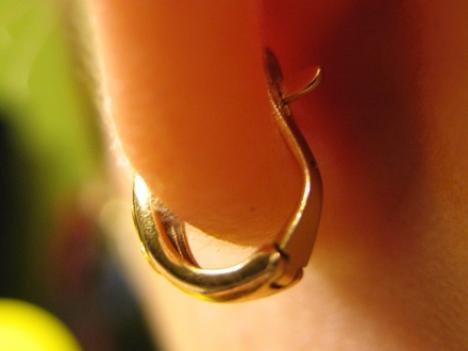 Что делать если уши после прокола не заживают