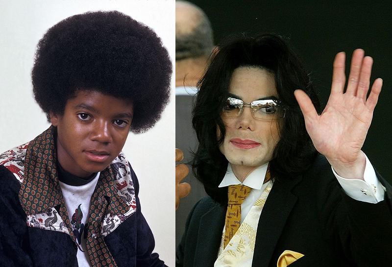 Майкл джексон фото до операций и после