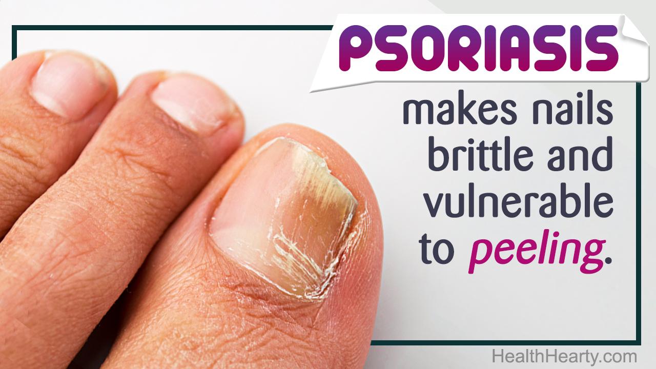 Fingernails are peeling
