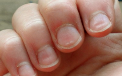 Indents in fingernails